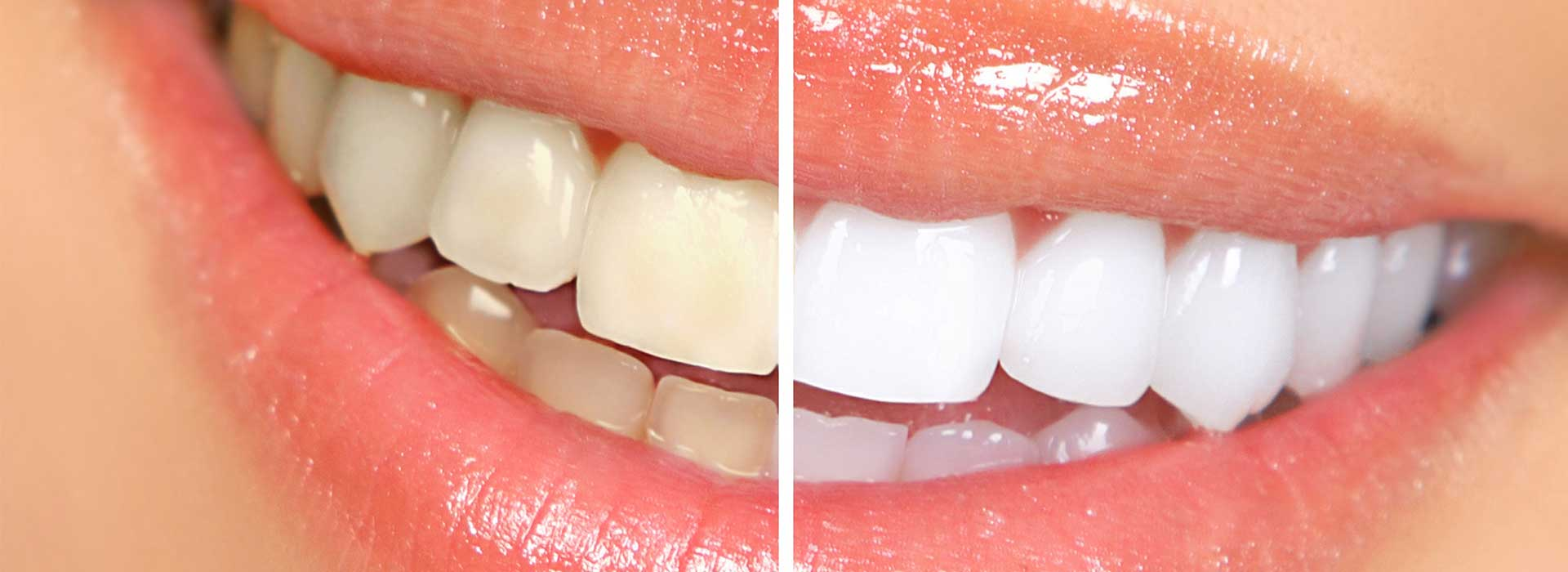 Teeth Stain_Tareedentalcare