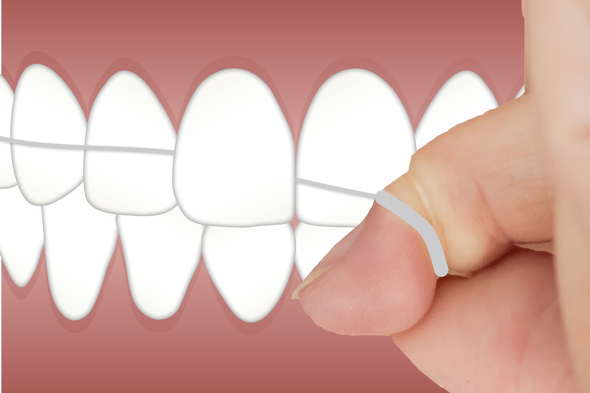 flossing your teeth at Taree Dental Care